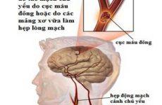 Phòng ngừa nguy cơ các bệnh liên quan đến mạch máu não