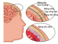 Những điều cần biết về viêm màng não