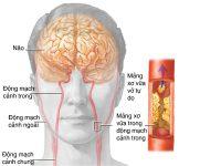 Dấu hiệu cửa bệnh thiếu máu não