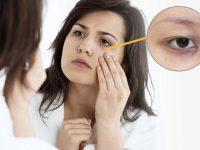 thâm quầng mắt là biểu hiện của bệnh gì