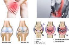 Bài thuốc trị đau mỏi các khớp hiệu quả