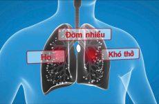 Một số phương thuốc hay chữa đàm nhiệt khái thấu hiệu quả